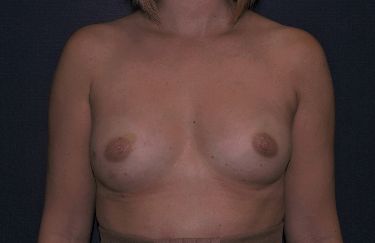 Fat Transfer Breast Augmentation Florida