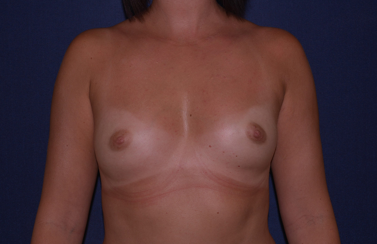 Best Boca Raton Breast Augmentation