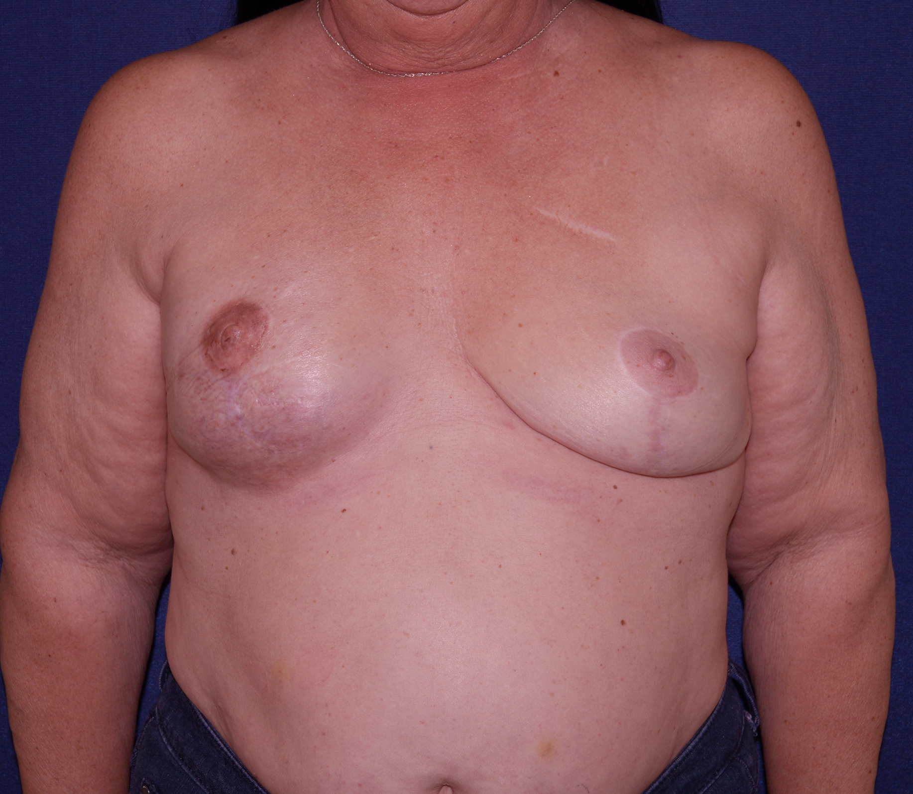 Valuable breast reconstruction after radiation excellent, support