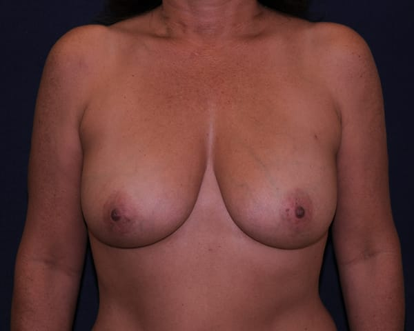 Breast Reconstruction Boca Raton