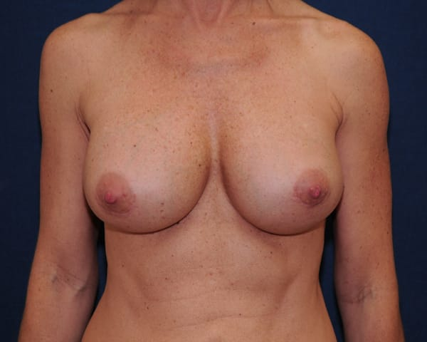 Breast Revision Boca Raton