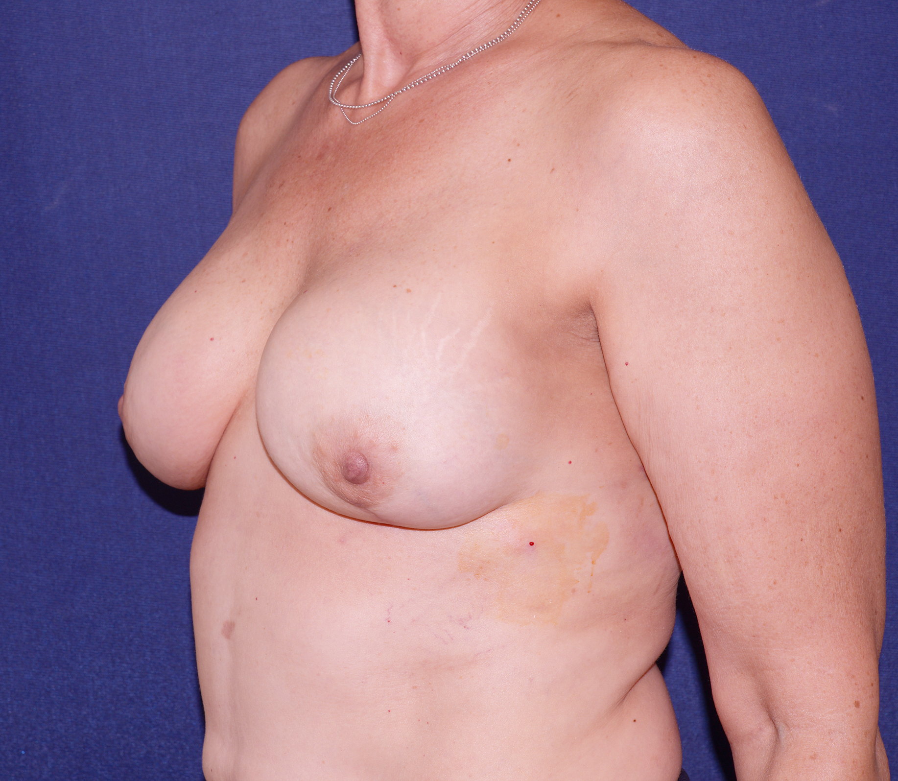 Women Who've Gone Flat After Mastectomies Are Baring Their Chests Their Truths